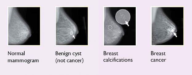 cancer cysts benign