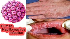human papillomavirus infection causes)