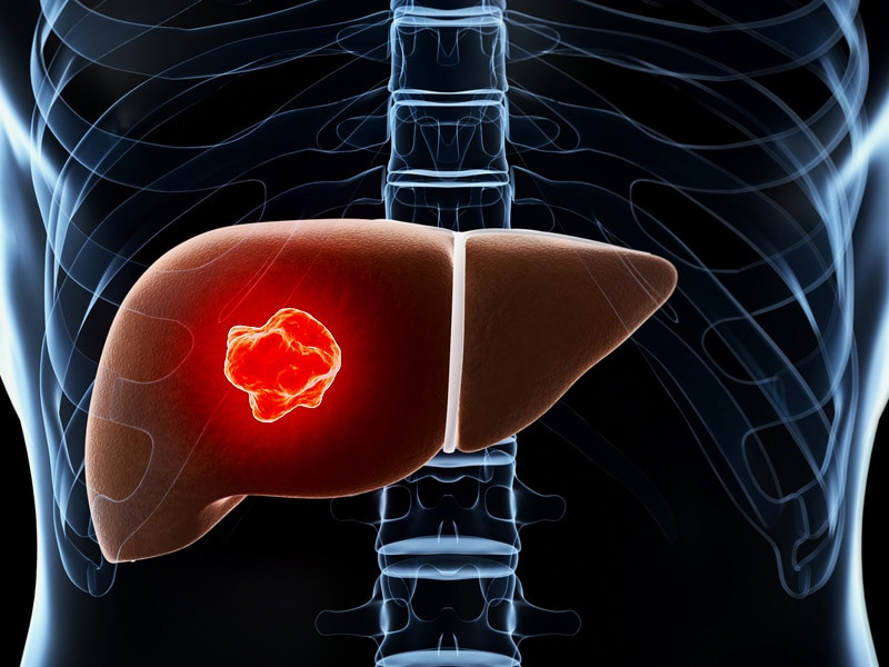 Hepatocellular Carcinoma: Targeted Therapy - Hepatic cancer therapy
