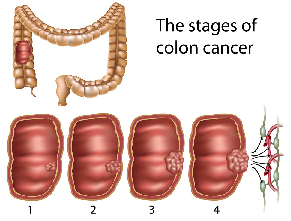 cancer colon benign radioterapie