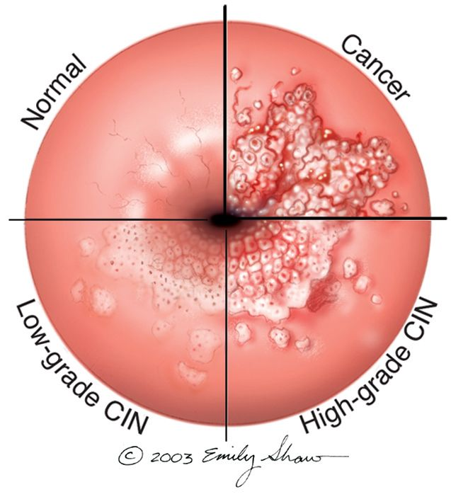 can hpv cause colon cancer