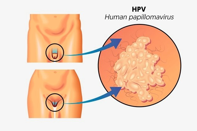 hpv cure male