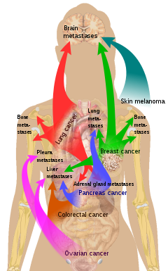 metastatic cancer meaning in marathi)