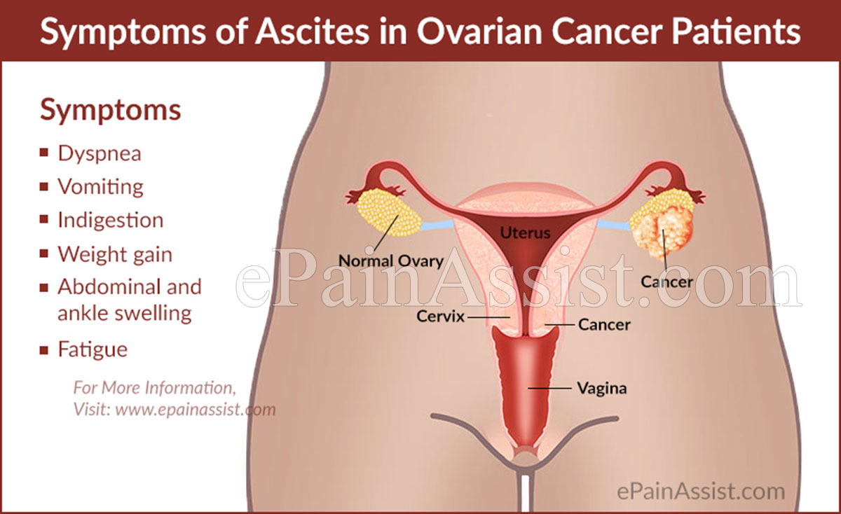 ovarian cancer with ascites
