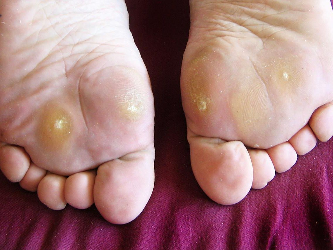 wart on foot heel)