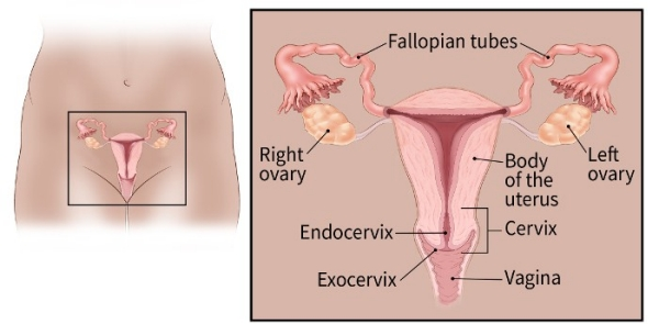 ovarian cancer definition de ce sunt viermii periculoși