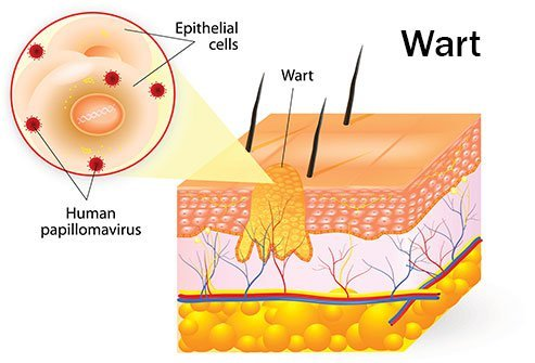wart virus outside body