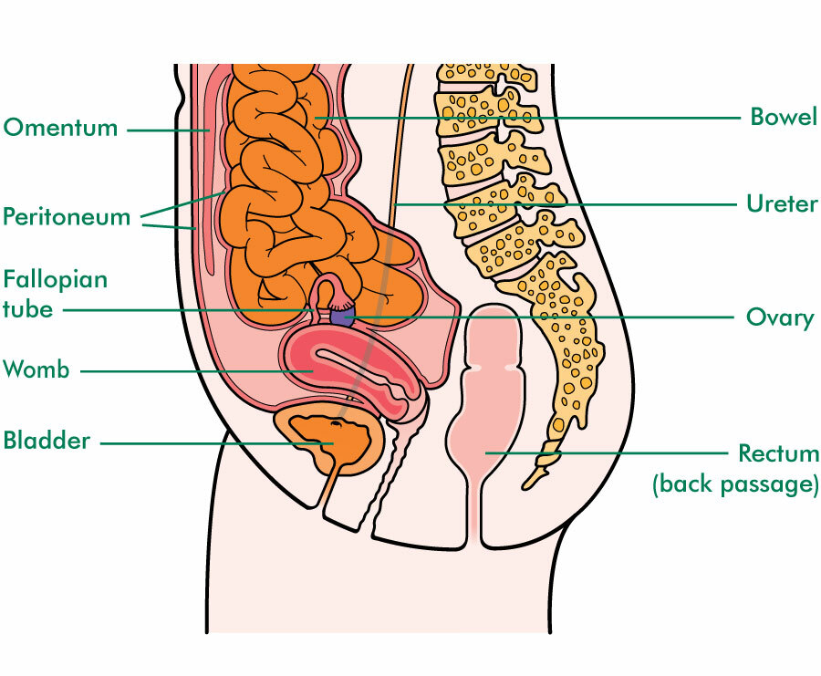 peritoneal cancer after oophorectomy