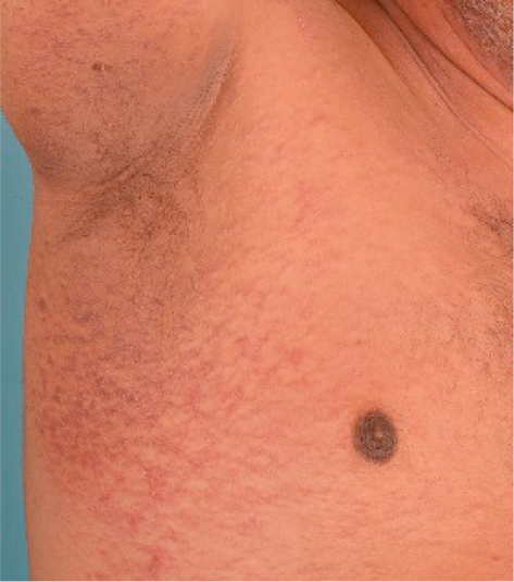 does confluent and reticulated papillomatosis go away