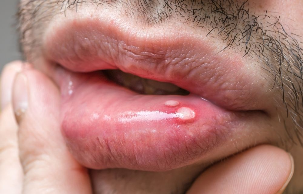 hpv warts on mouth