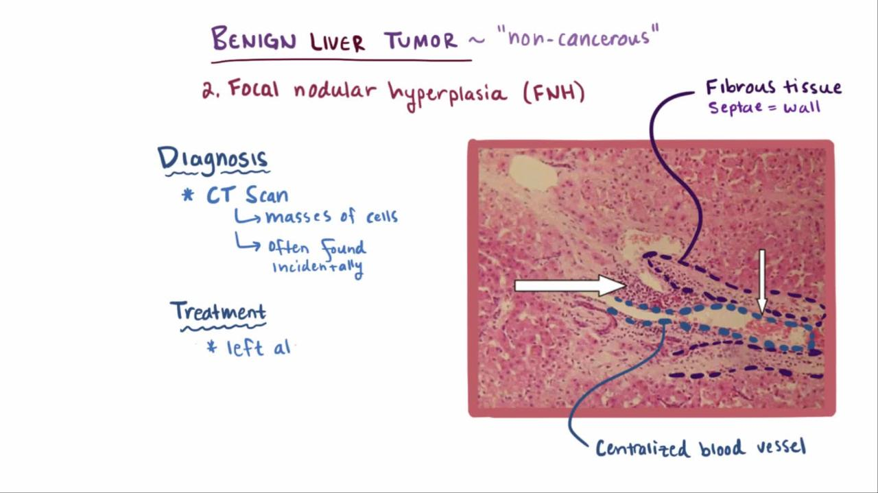 Liver Metastasis: Biology and Clinical Management