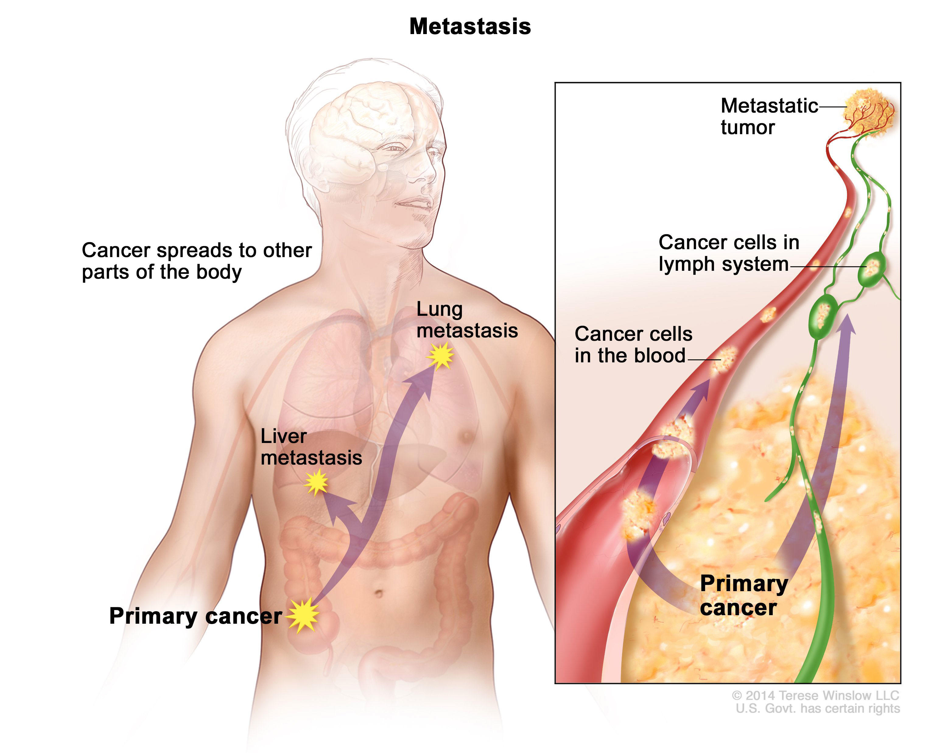 Metastatic cancer causes. Traducere