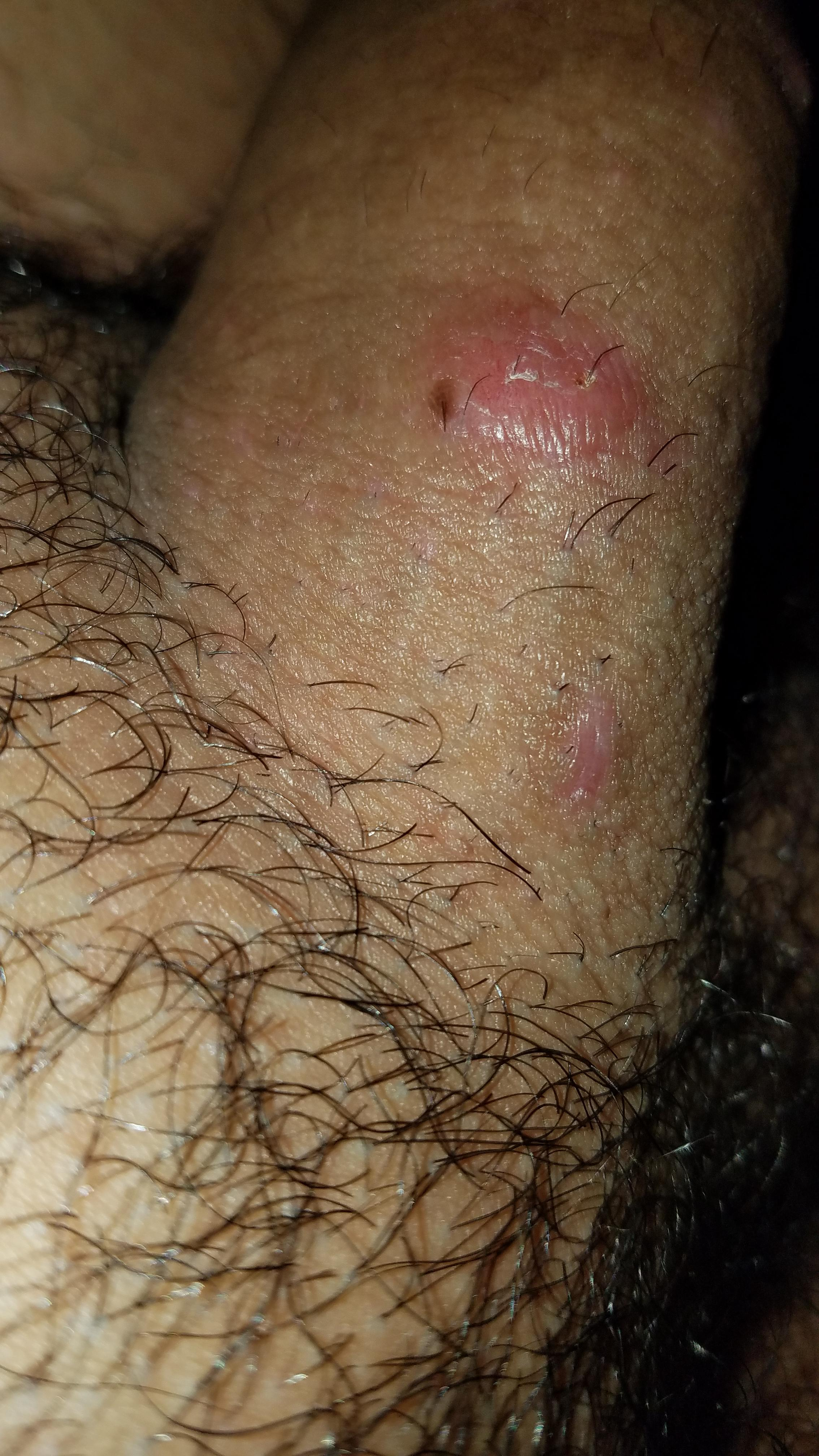 hpv treatment reddit