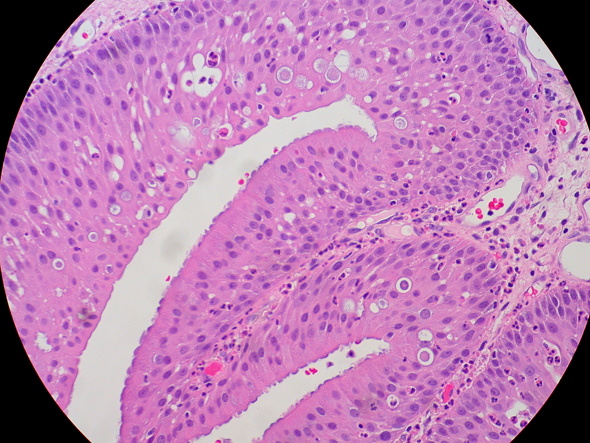 oncocytic papilloma