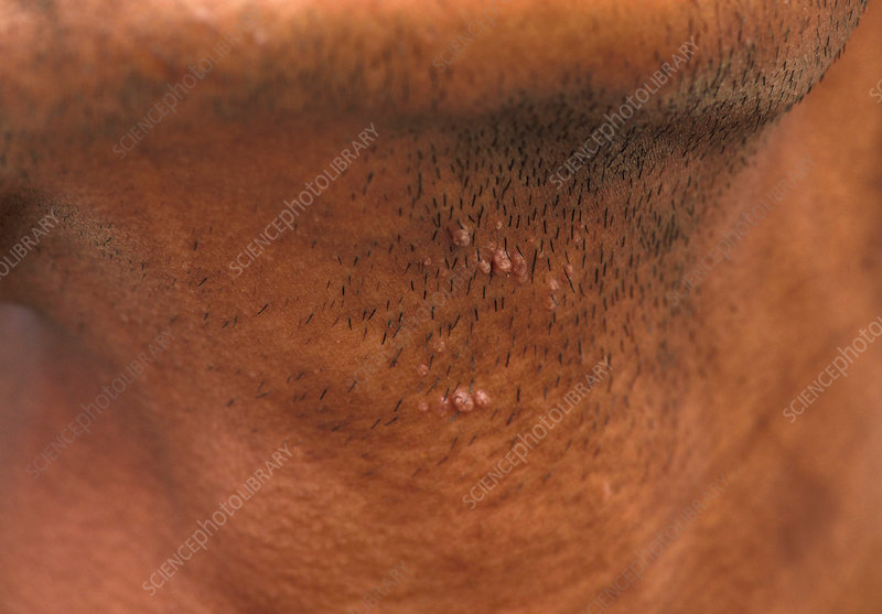 hpv on the neck)