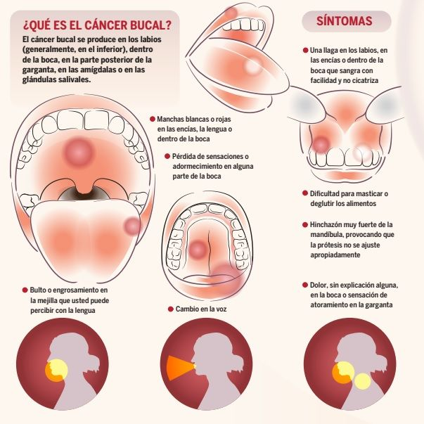 """Que es cancer her2. 2 Replies to """"Tumora hipotermie"""""""