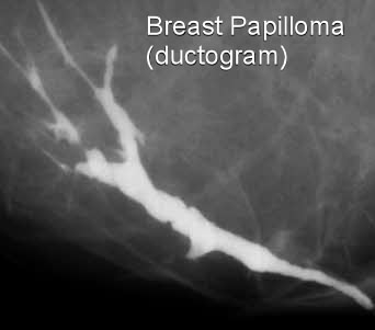 Ductal papilloma treatment