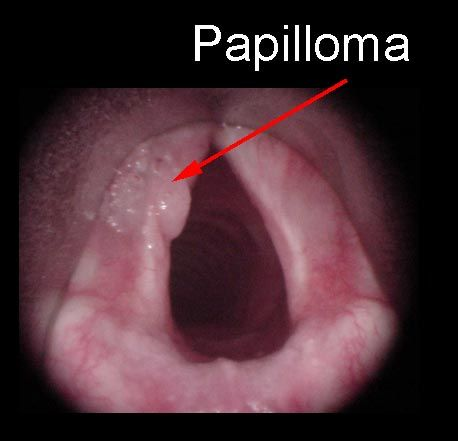 squamous papillomatosis symptoms