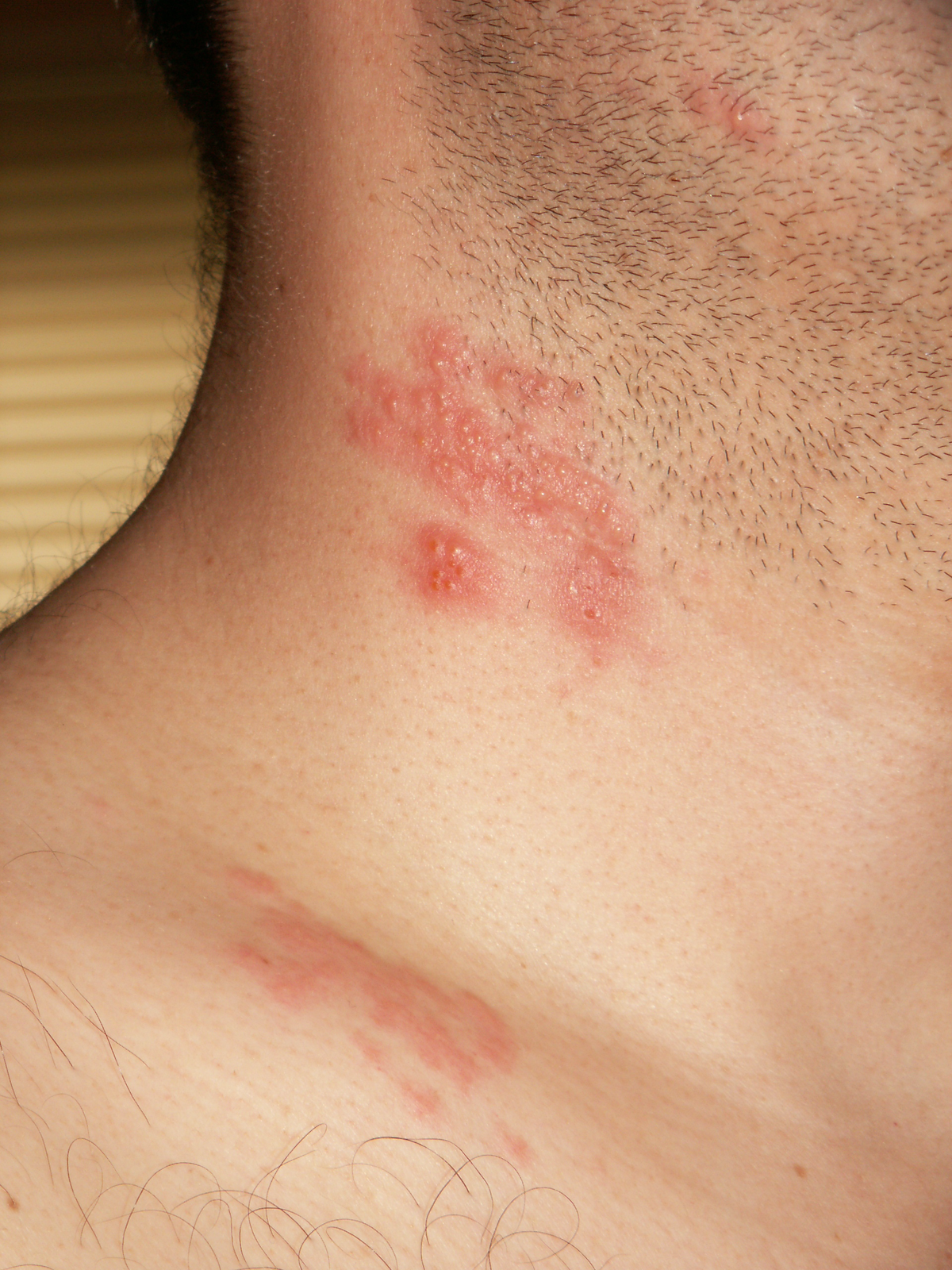wart virus on neck human papillomavirus vaccine period