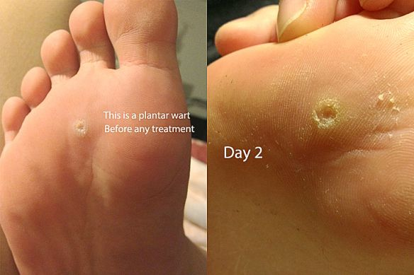 Wart on foot with black spots - eng2ro.ro