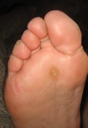 warts to foot