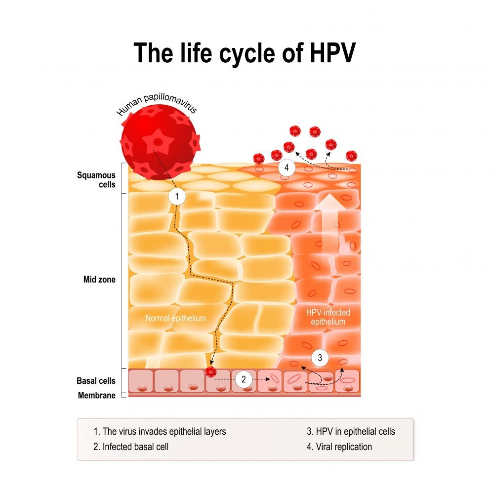 hpv can you get it by kissing)