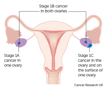 peritoneal cancer while pregnant)