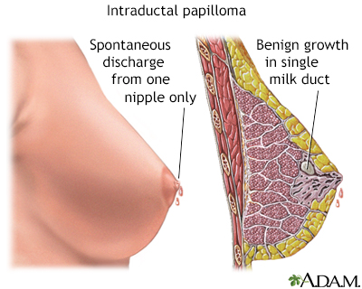 intraductal papilloma liver