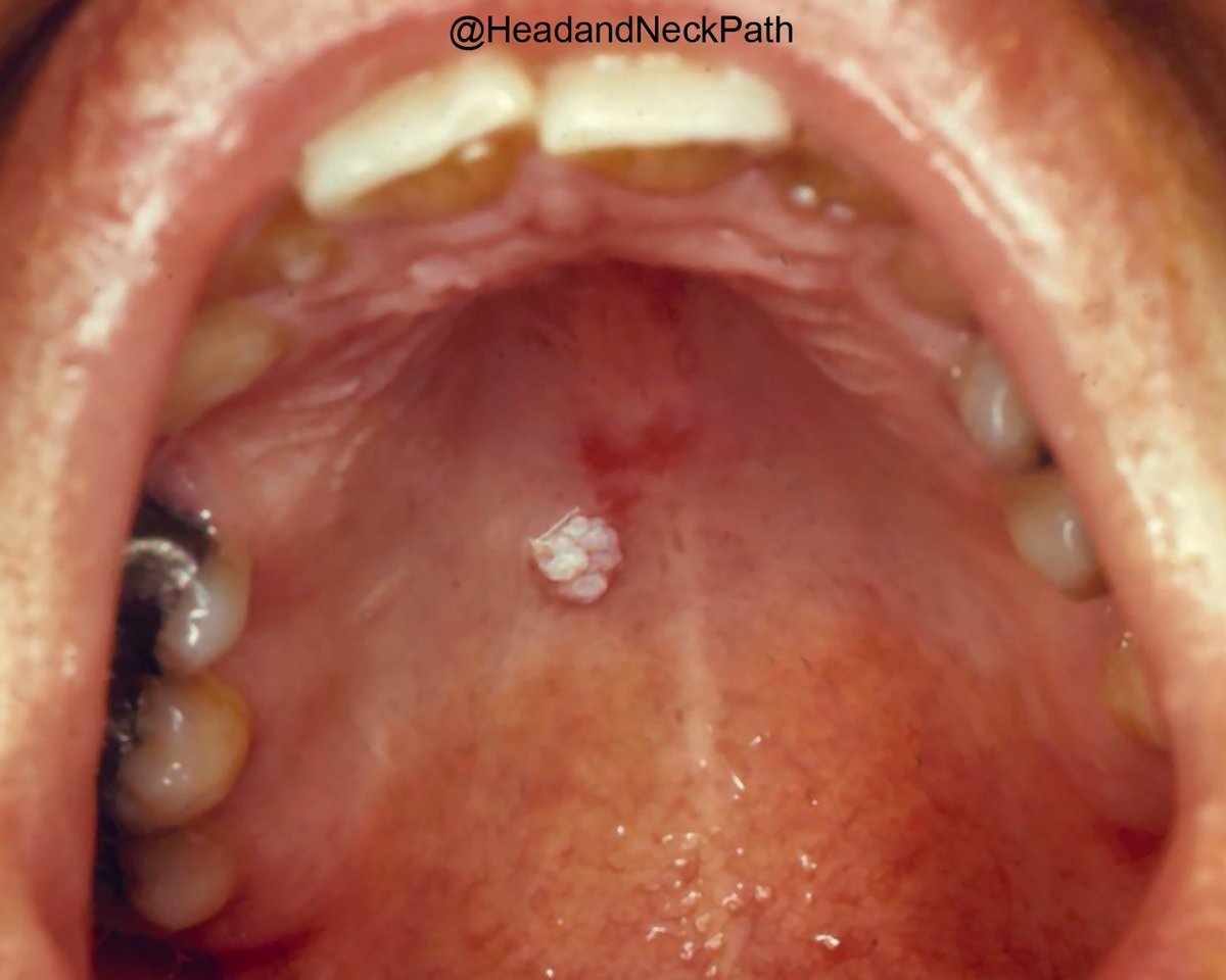 papillary lesion mouth)