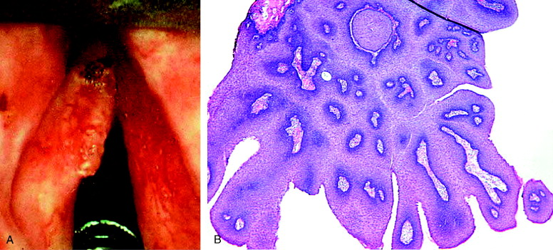 laryngeal papillomas pathology