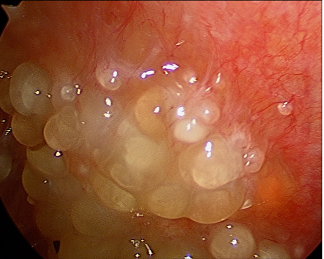 peritoneal cancer end of life)