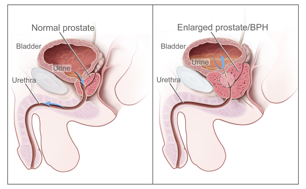 prostate cancer benign prostatic hyperplasia