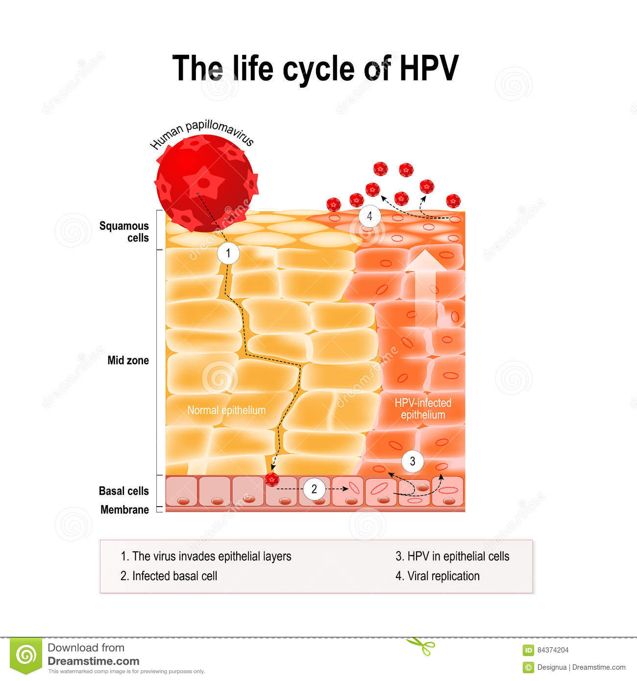 Can cancer causing hpv cause warts
