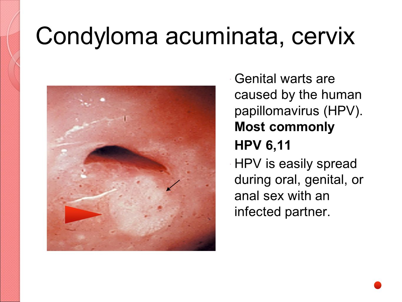 Condyloma acuminata during pregnancy. Uploaded by