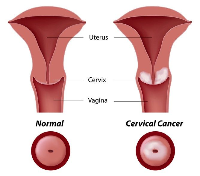 endometrial cancer caused by hpv giardien mensch gefahrlich