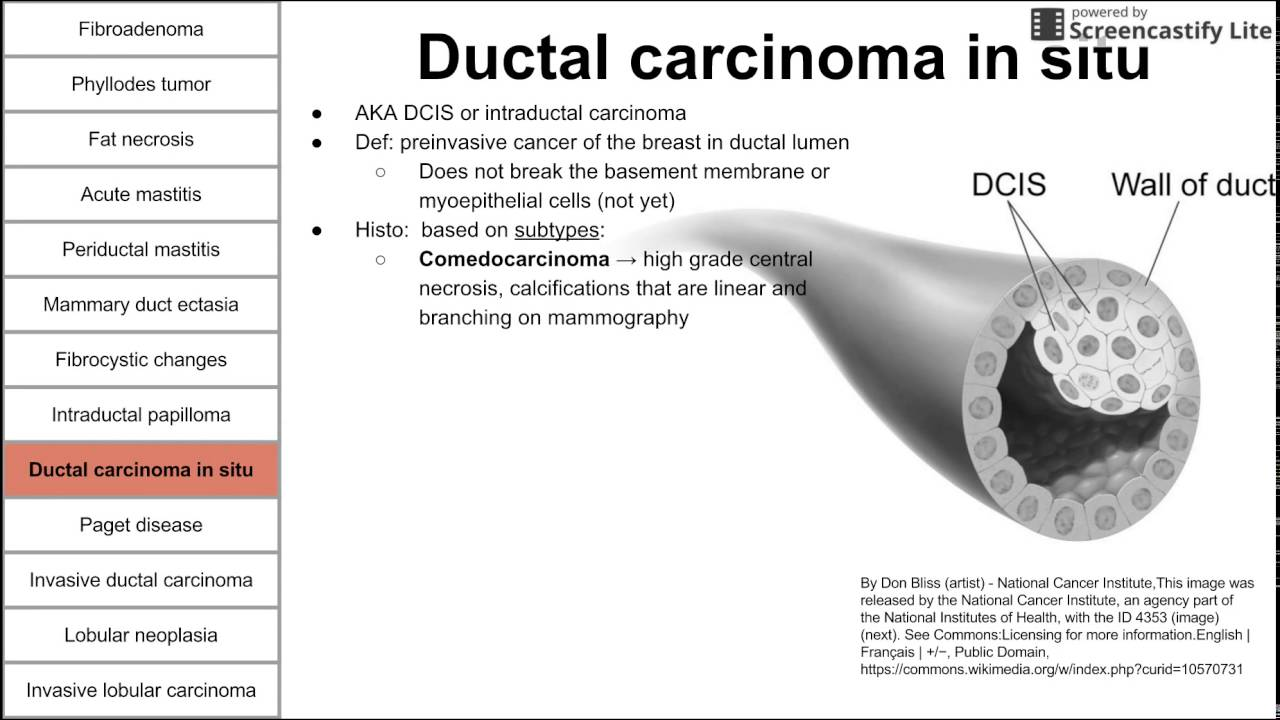 intraductal papilloma and dcis)