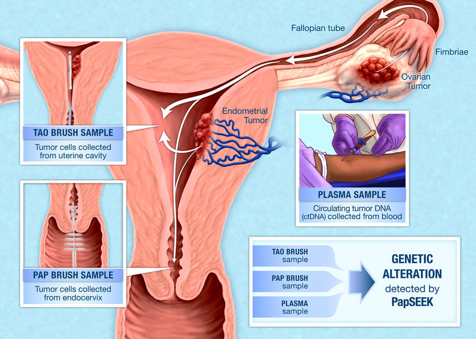 ovarian cancer vs endometriosis)
