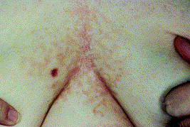 Confluent and reticulated papillomatosis during pregnancy.