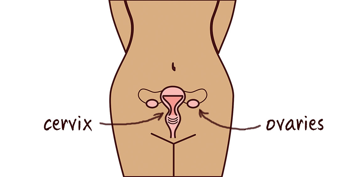 ovarian cancer from hpv)