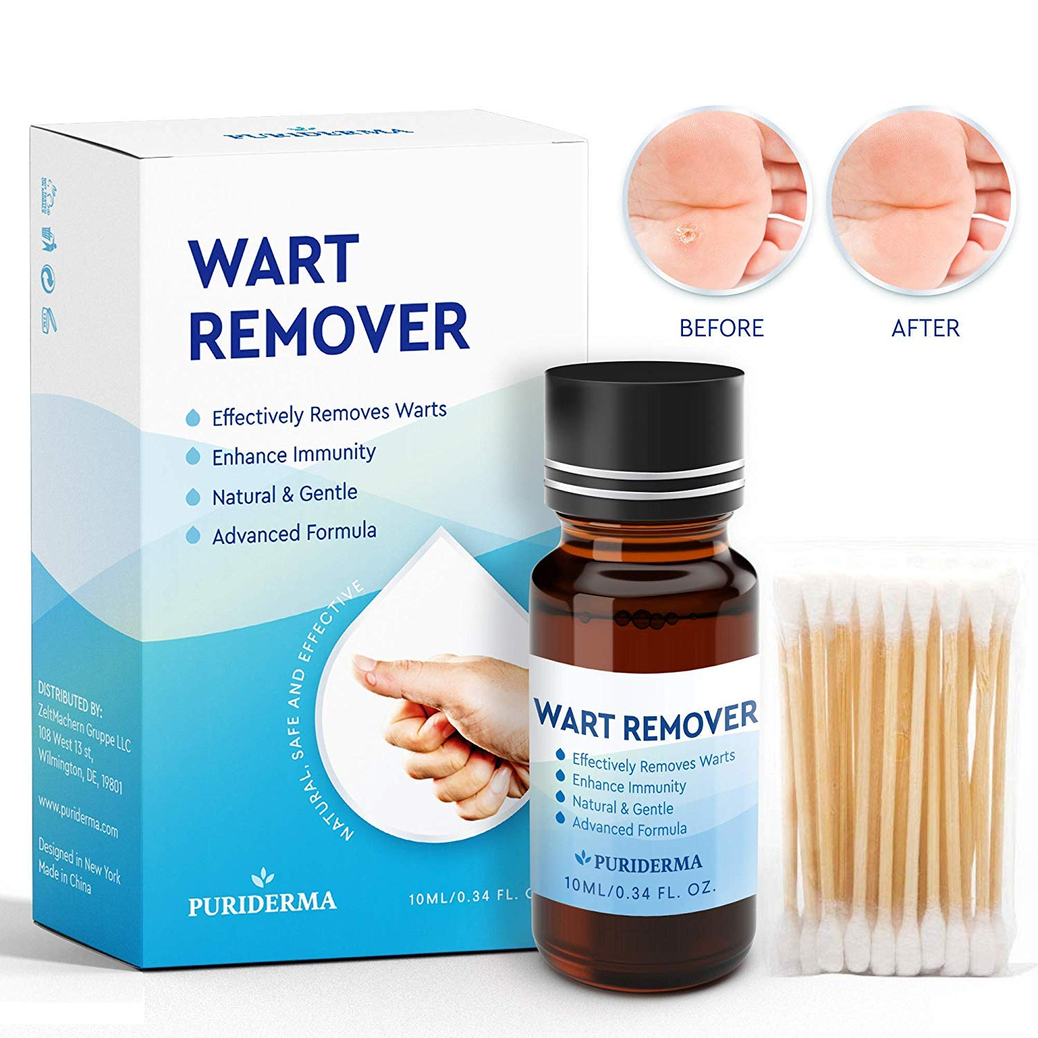 wart treatment prescription