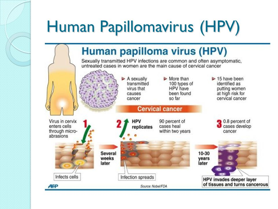 papilloma virus donne cause)