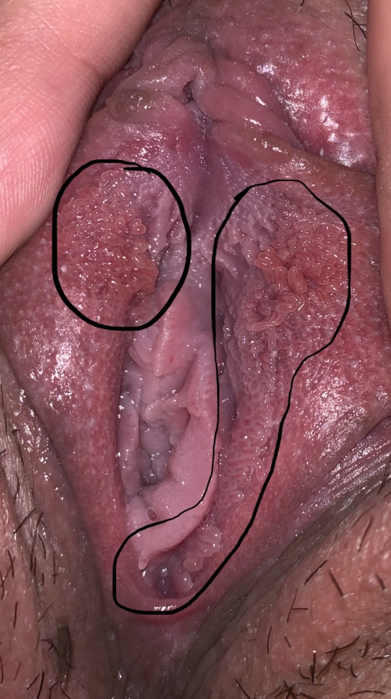 vestibular papillomatosis normal
