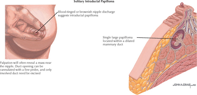 duct papilloma discharge)