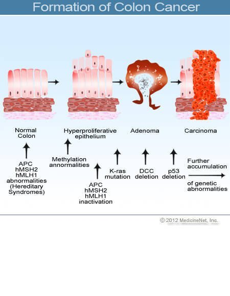 Cause of colorectal cancer. REVIEW-URI