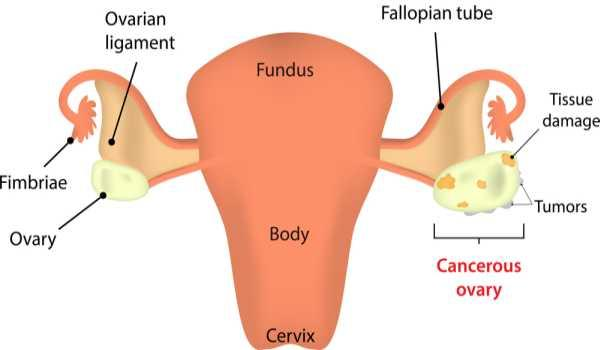 ovarian cancer definition