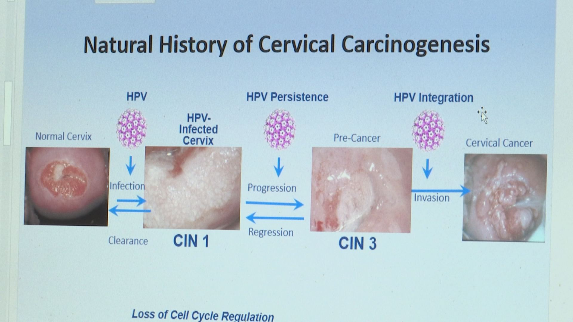worried about hpv throat cancer)