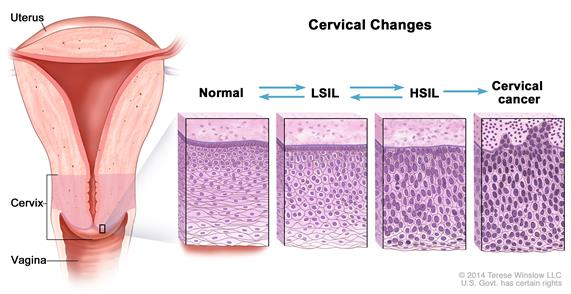 hpv lsil meaning)