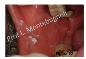 intraductal papilloma removal recovery time oxiuros lomper ninos
