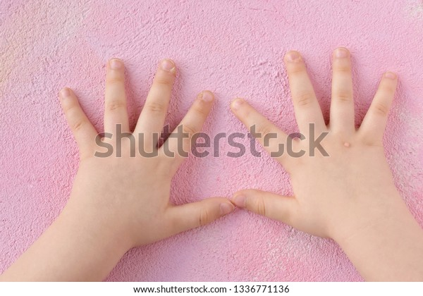 warts on babies hands)