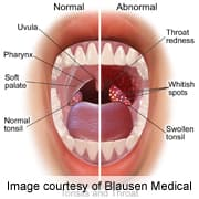 Papilomul oral la câini, Symptoms of throat papilloma